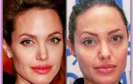 posts-related-to-celebrity-without-makeup-before-and-after