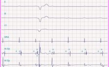 Does pacing in the setting of AV block and myocardial infarction require the presence of symptoms?_5.jpg