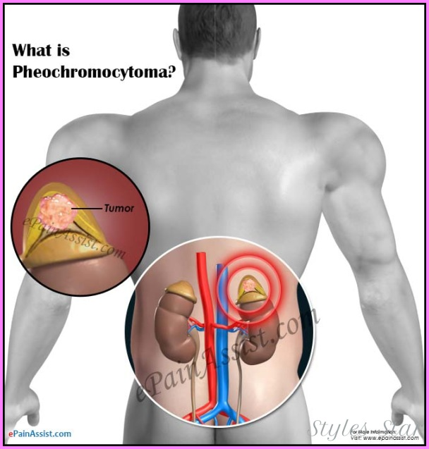 How is pheochromocytoma best diagnosed?_18.jpg