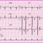 Is non-Q-wave infarction an ECG diagnosis?_14.jpg