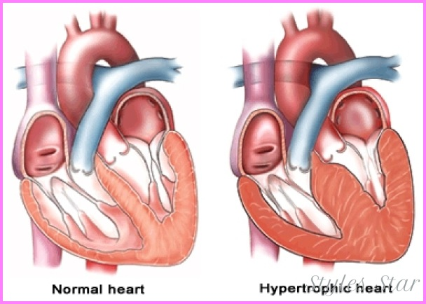 Hypertrophic Cardiomyopathy and Heart Failure | Columbia ...
