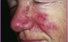 All About Rosacea_18.jpg