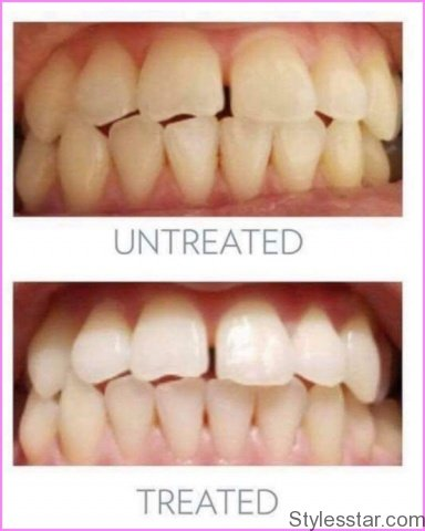 Can Whitening Your Teeth Damage Them Is Teeth Whitening Harmful Risks Of Teeth Whitening_0.jpg